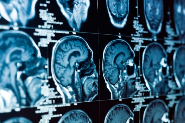 Artificial Intelligence Which Automatically Detects Alzheimer's