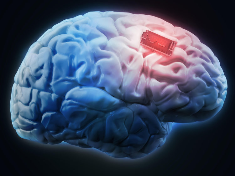 Neural Implant technology